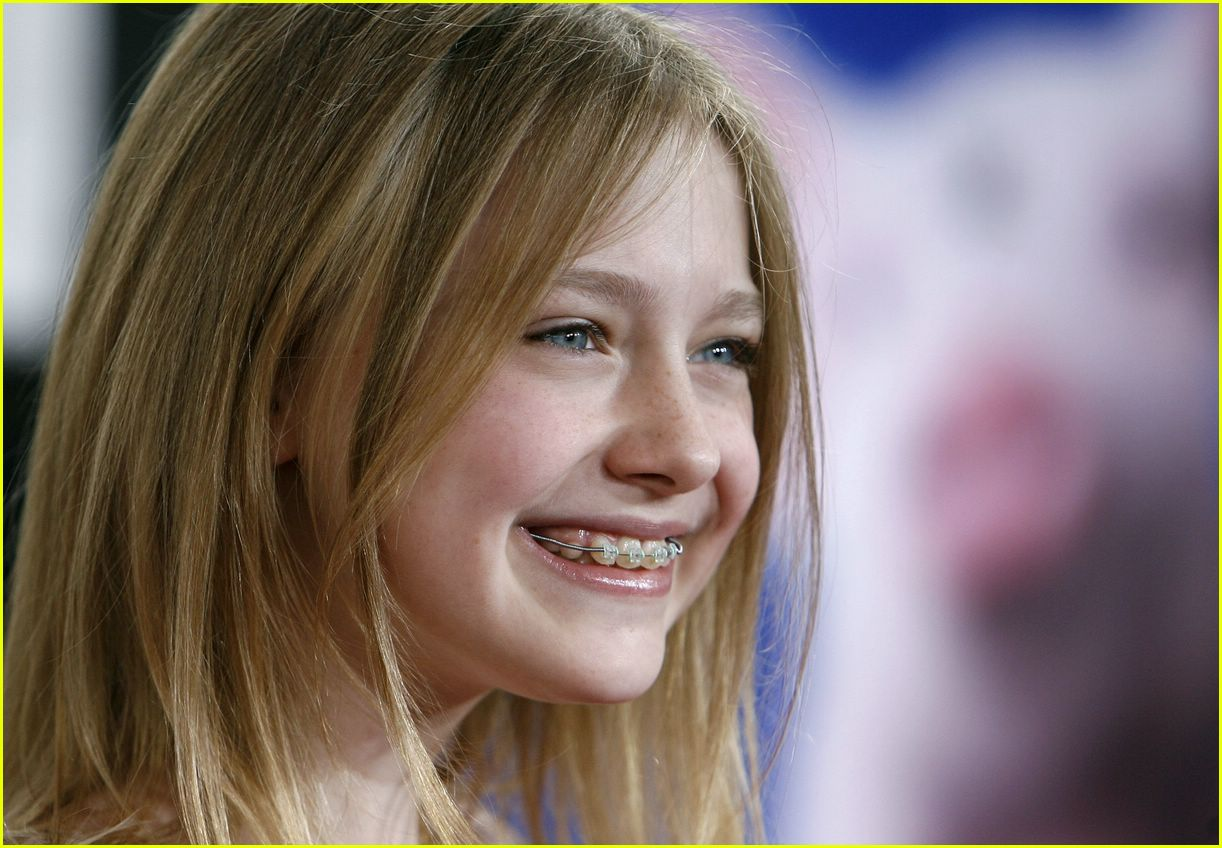 dakota fanning braces 02