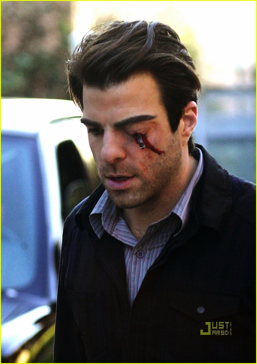zachary quinto gets stabbed in eye with pen photo 2377712 zachary