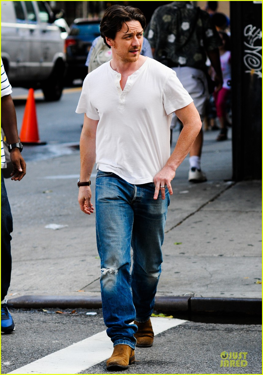 james mcavoy bruised and bandaged 02