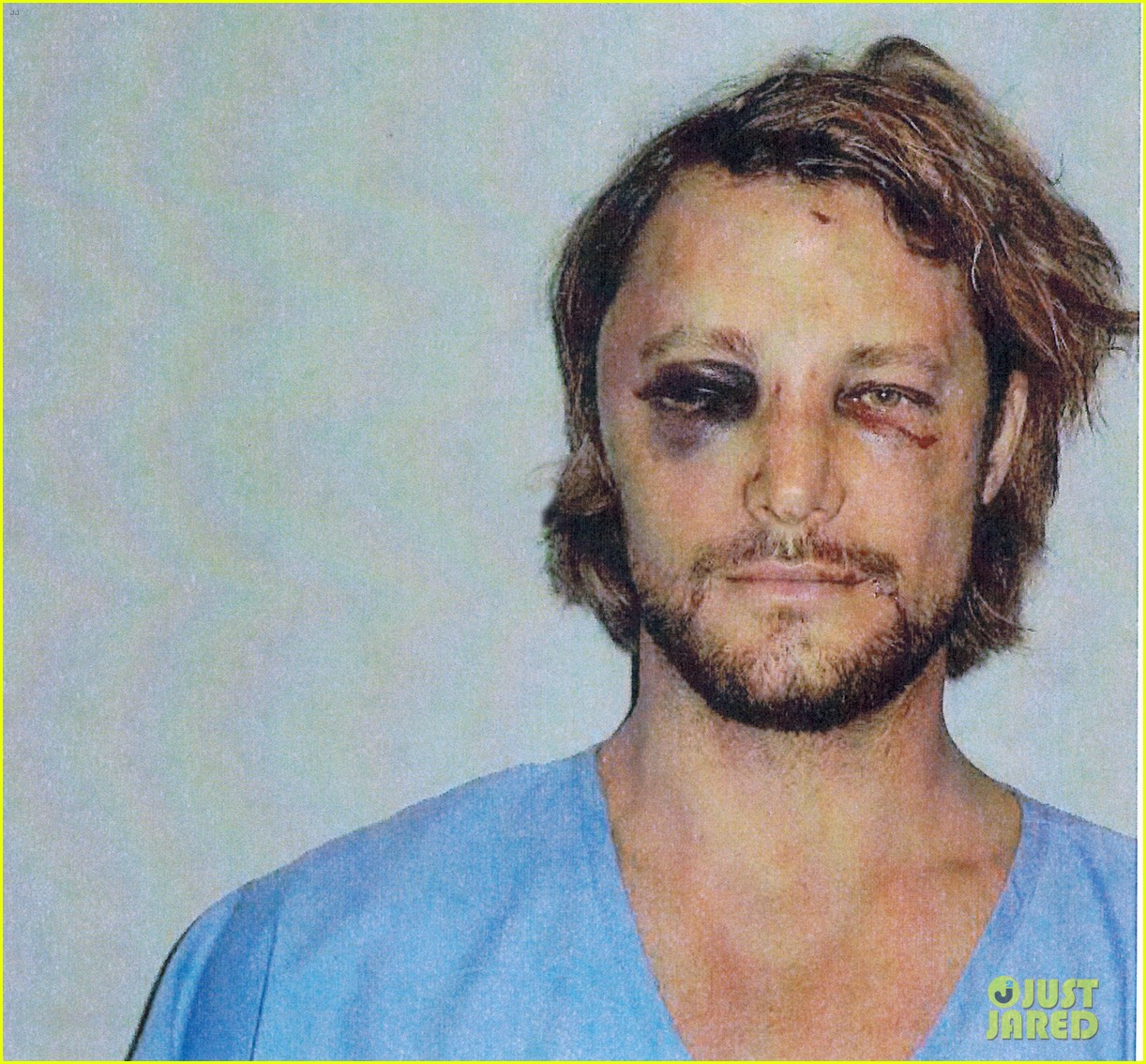 gabriel aubry black eye bloody face revealed 03