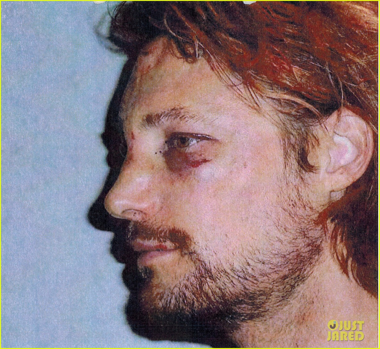 gabriel aubry black eye bloody face revealed 042764614