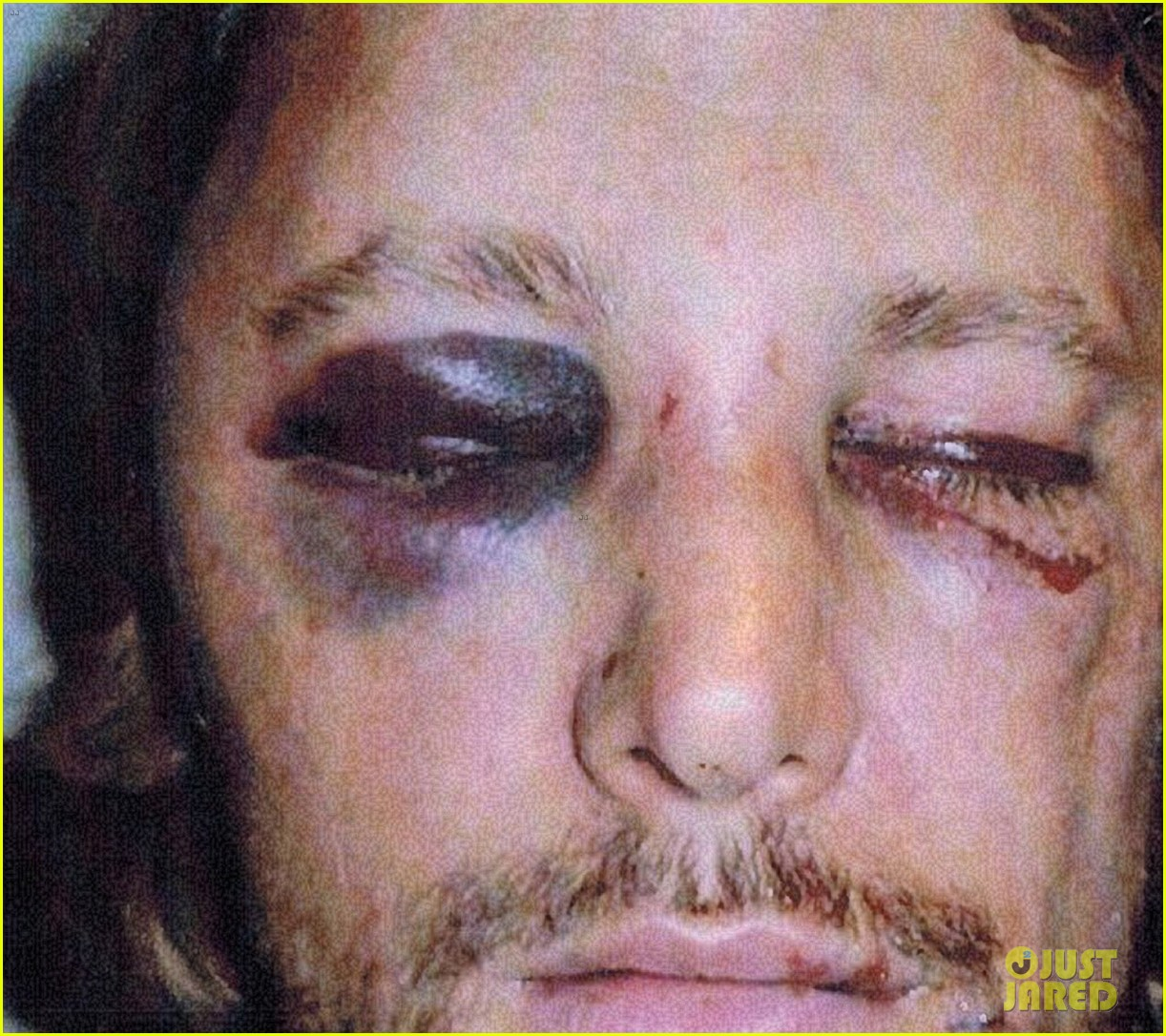 gabriel aubry black eye bloody face revealed 052764615