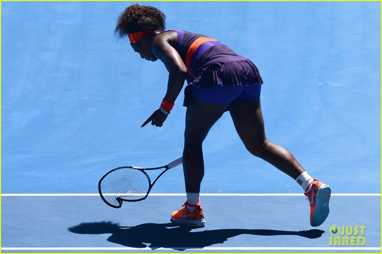 serena williams reveals swollen ankle after breaking racquet 03