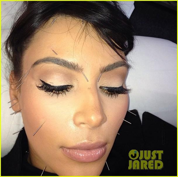 kim kardashian shows off acupuncture face 032837854