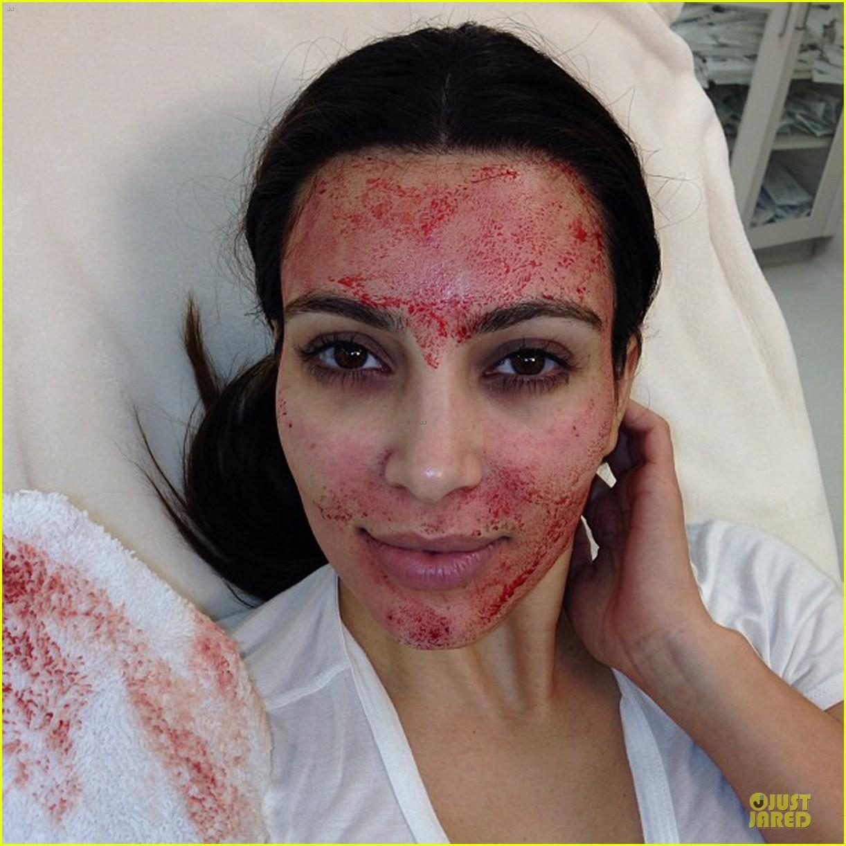 pregnant kim kardashian vampire facial 05