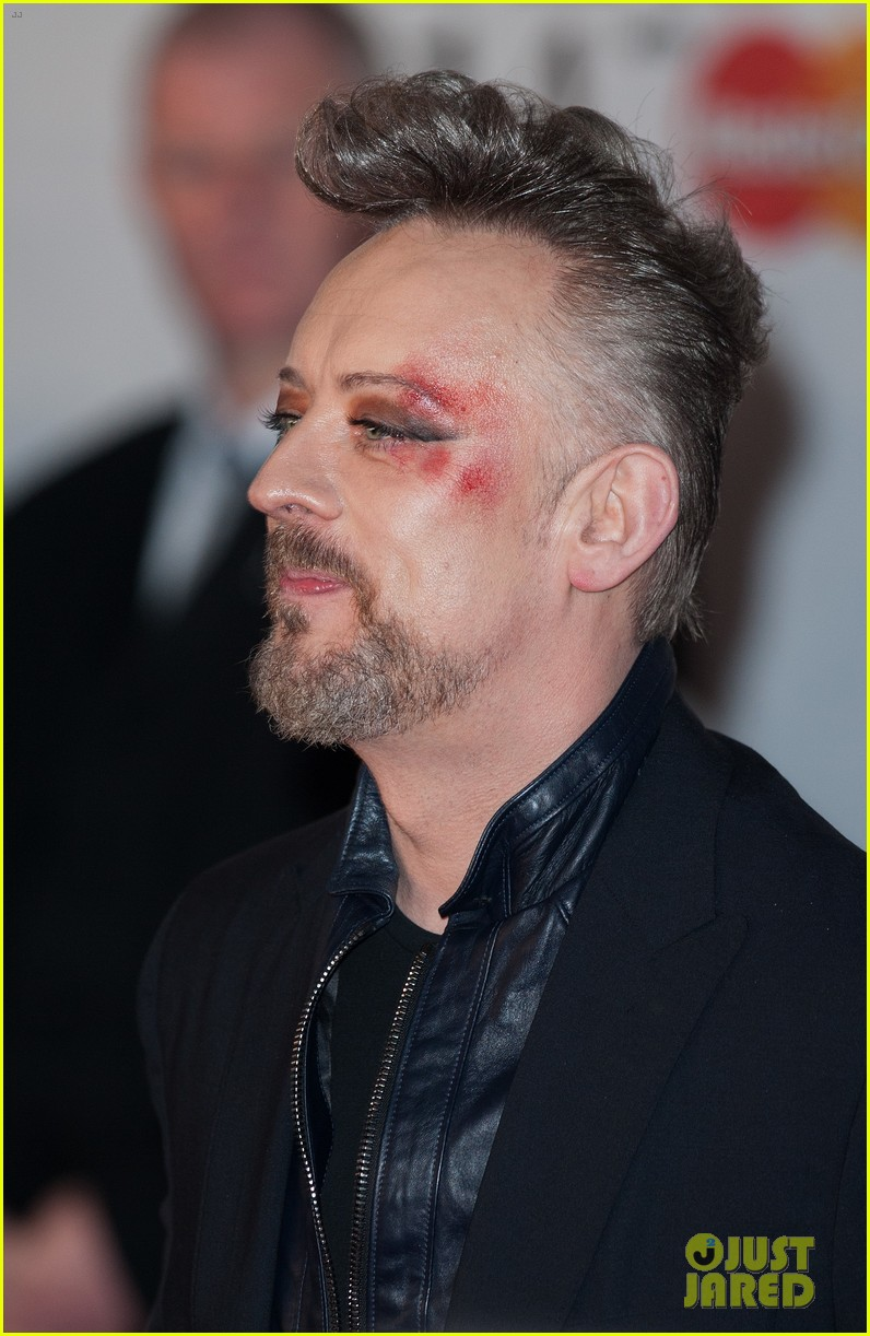 boy george attends brit awards with bruised bloodied eye 03