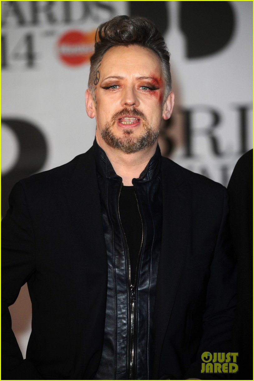 boy george attends brit awards with bruised bloodied eye 07