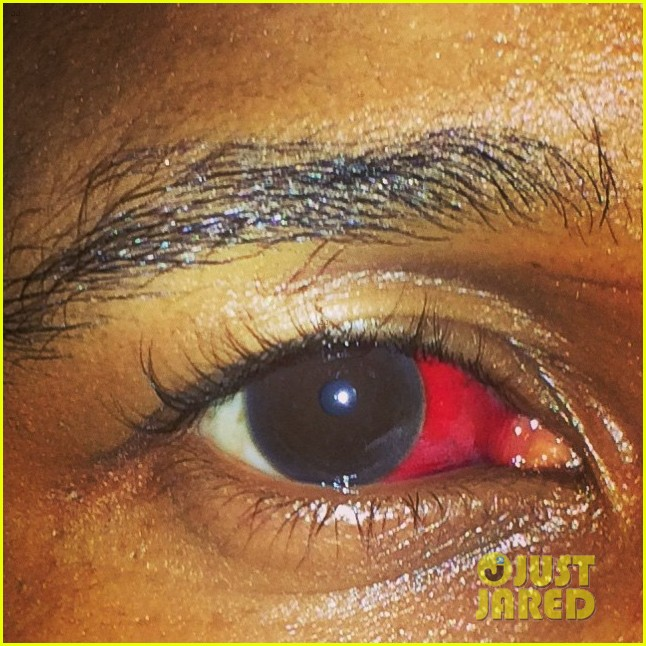 usher suffer red eye at nye party 043271804