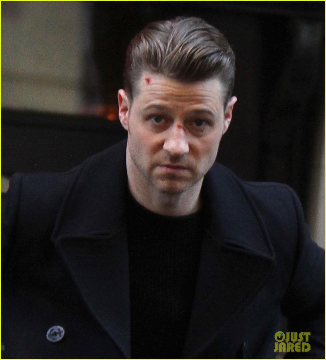 Ben Mckenzie Sports Bloody Face During Gotham Filming Photo