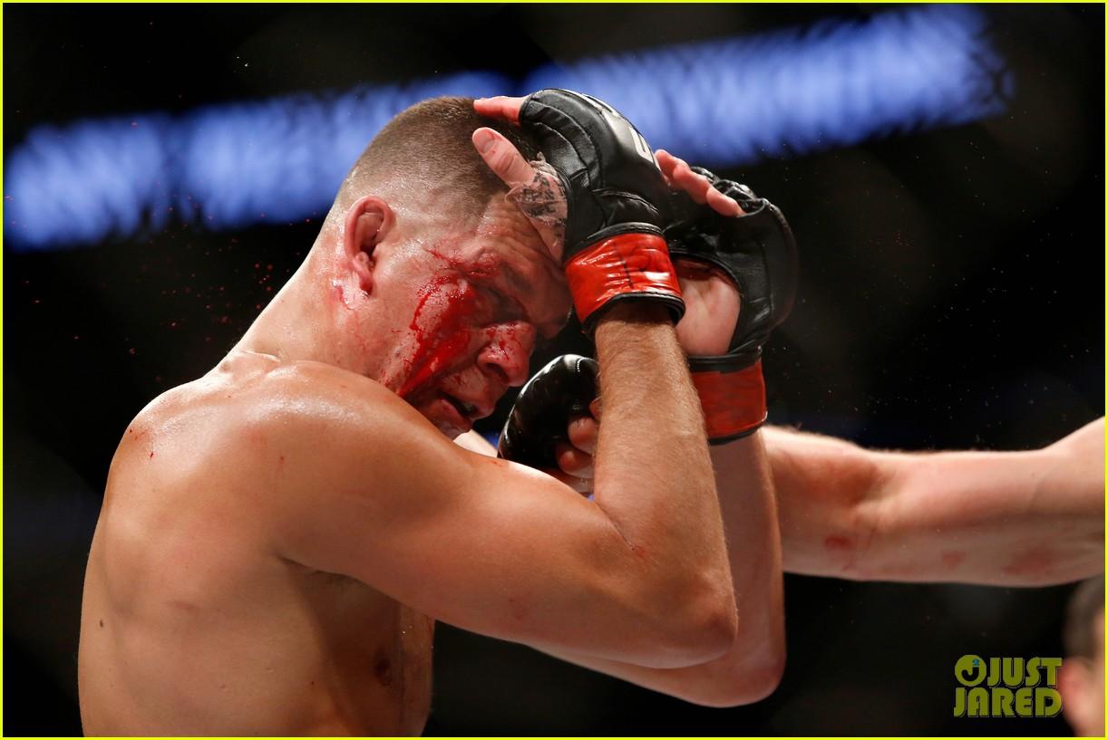 Conor McGregor Defeats Nate Diaz in Bloody UFC 202 Fight ...