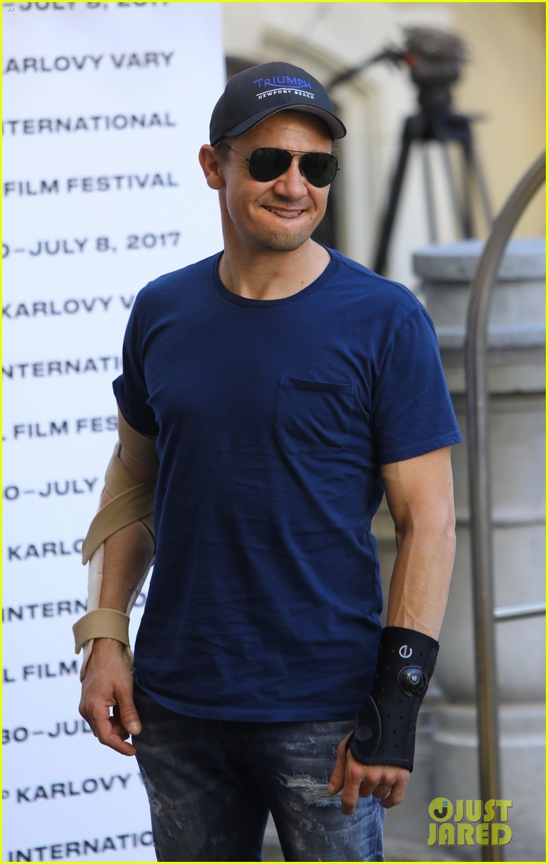 jeremy renner reveals how he injured both his arms 043924715