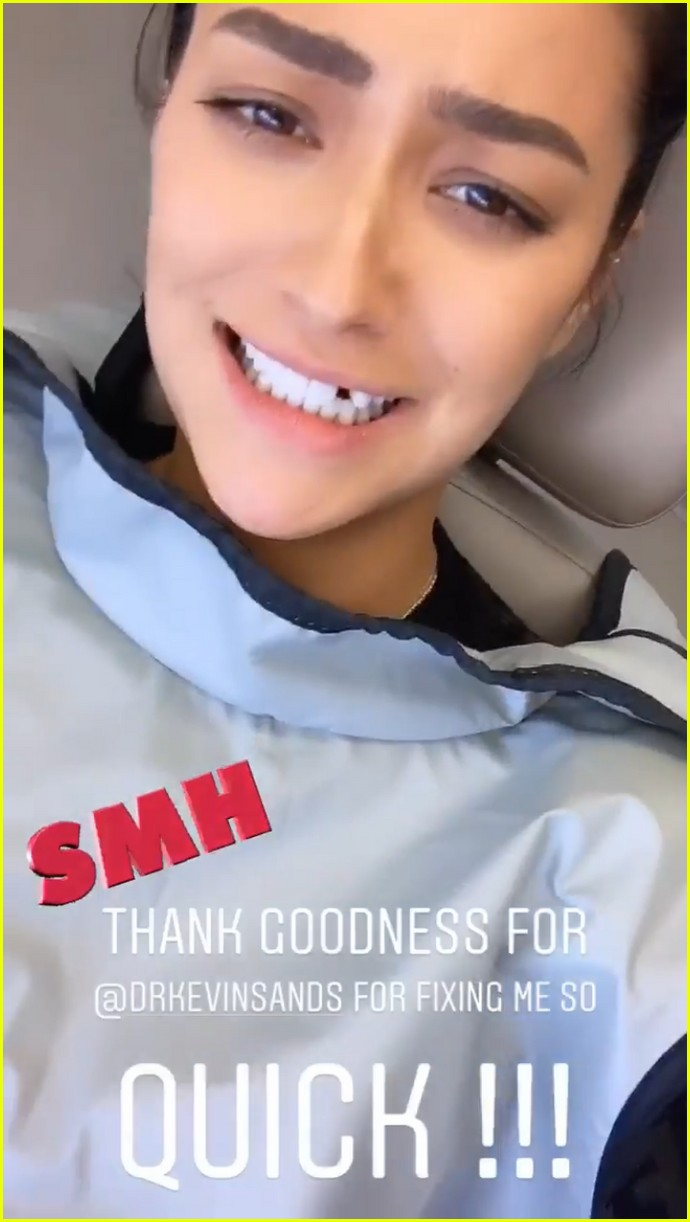 shay mitchell missing tooth 01