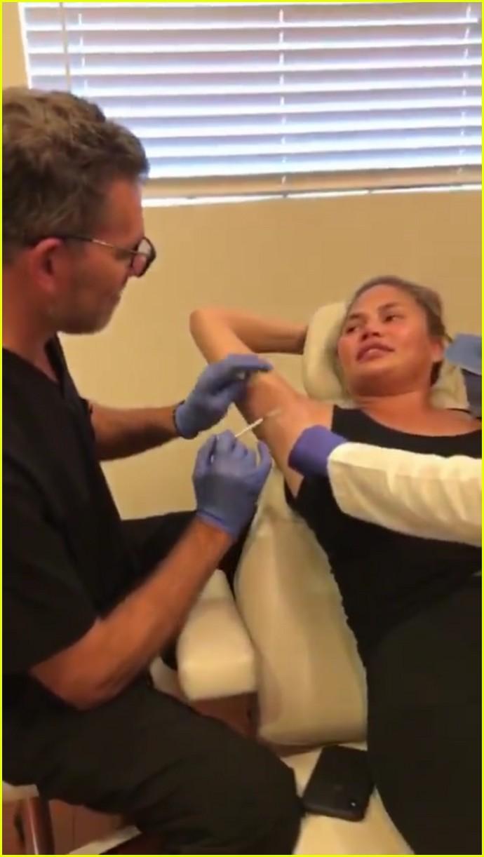 chrissy teigen gets botox in underarm 034335695