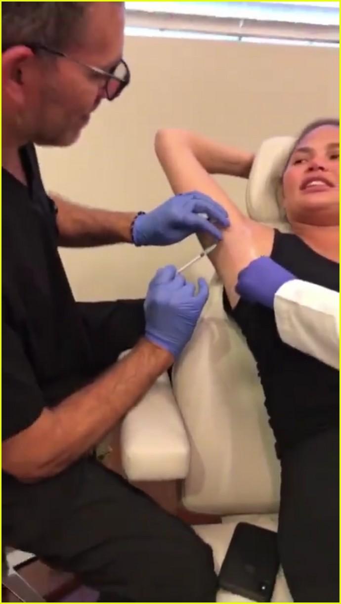 chrissy teigen gets botox in underarm 054335697