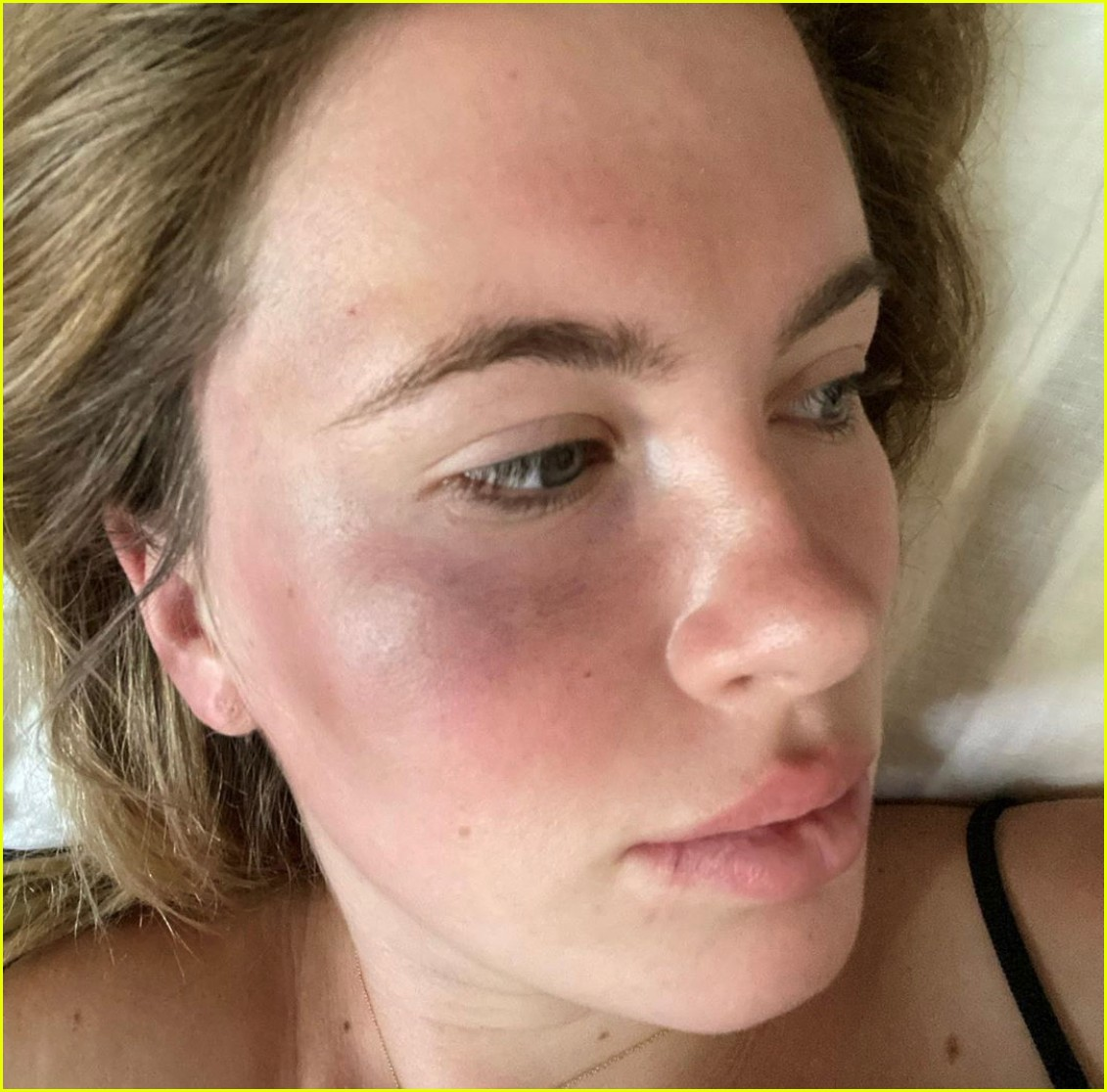 ireland baldwin attacked and robbed 024477171