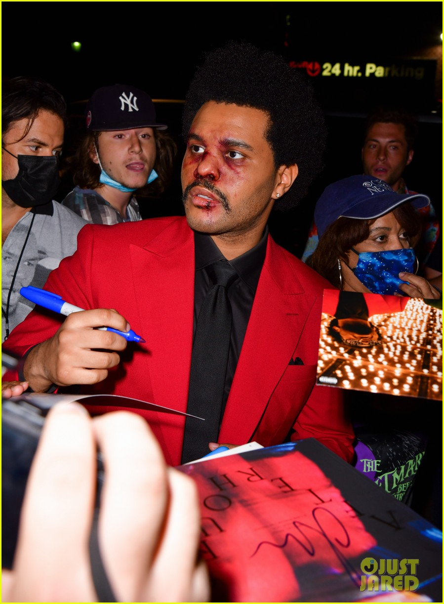 the weeknd bruised face for vmas 024478038