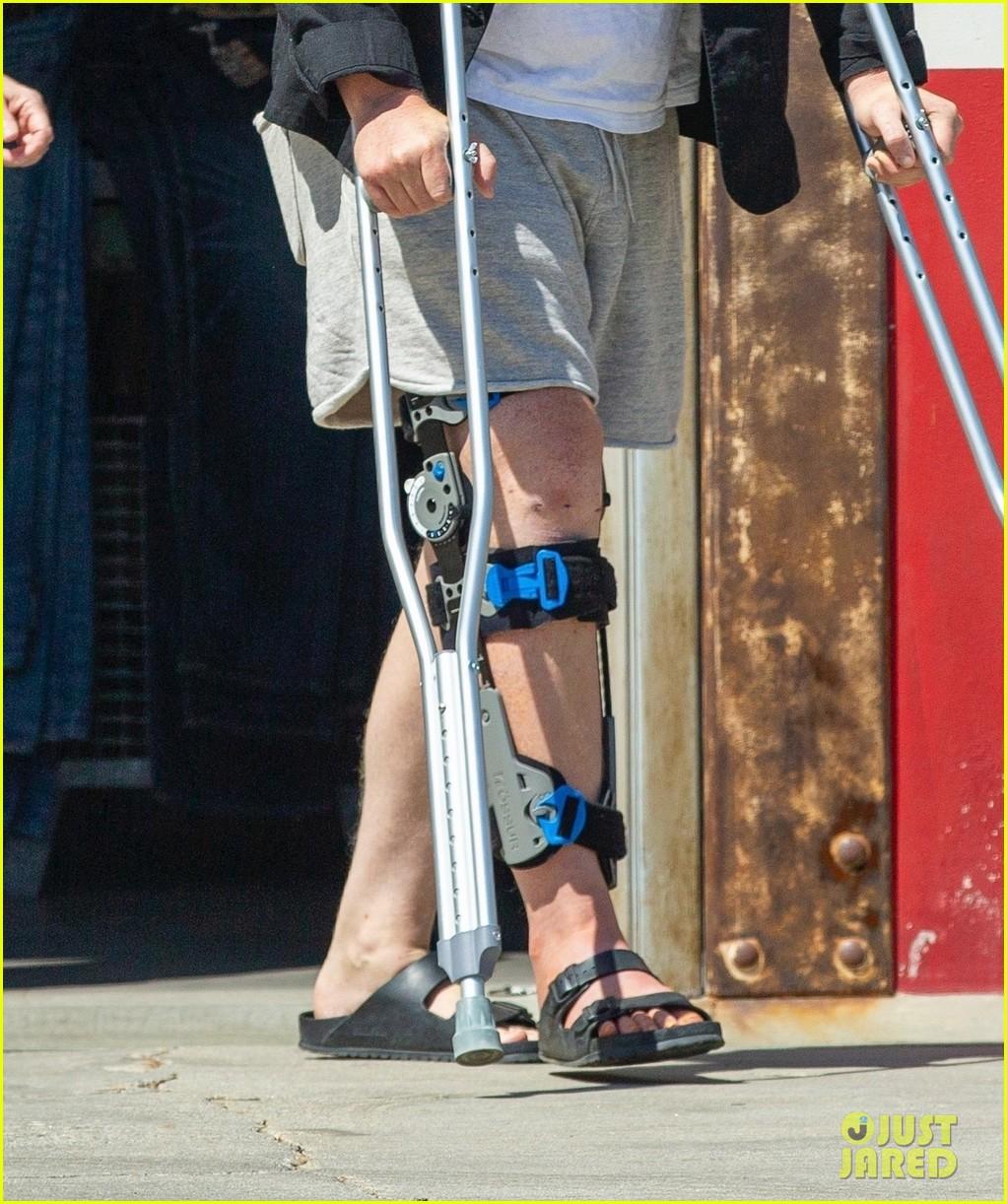 jesse plemons wears leg brace kirsten dunst baby no 2 044539623
