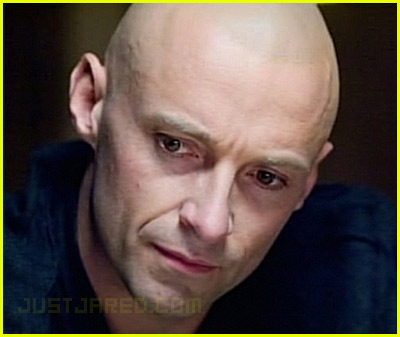 Hugh Jackman: Is Bald a Good Look?