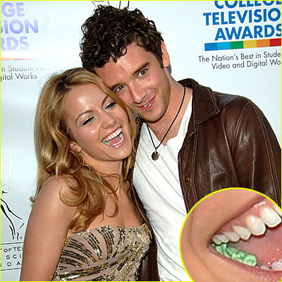 Becki Newton Has Nice Chompers