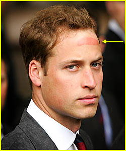 Prince William has Hat Forehead