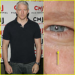Did Anderson Cooper Remove Fatty Deposit from His Eye?