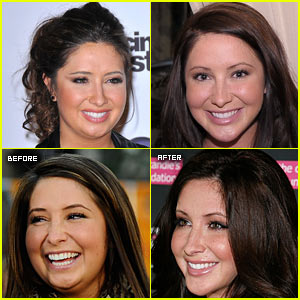 Bristol Palin: Jaw Surgery Explained