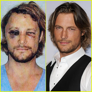 Gabriel Aubry's Black Eye & Bloody Face Revealed - Pics!
