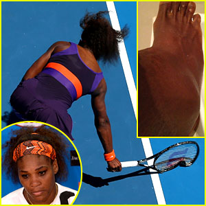 Serena Williams Reveals Swollen Ankle After Breaking Racquet