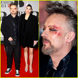 Boy George Attends BRIT Awards with Bruised & Bloodied Eye