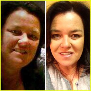 Rosie O'Donnell Shows Off Fifty Pound Weight Loss - See Her Before & After!