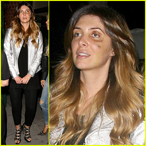 Kim Kardashian's BFF Brittny Gastineau Involved in Mutual Combat in Her Hotel Room, Has Badly Bruised Eye