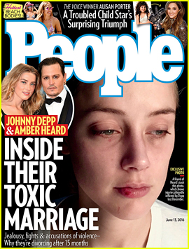 Amber Heard Reveals More Injuries Allegedly Caused By Johnny Depp In Domestic Violence Assault