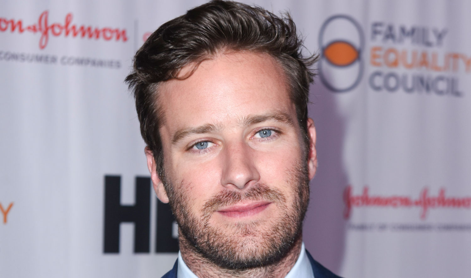 Armie Hammer Strained His Calf While Moonwalking! | Armie
