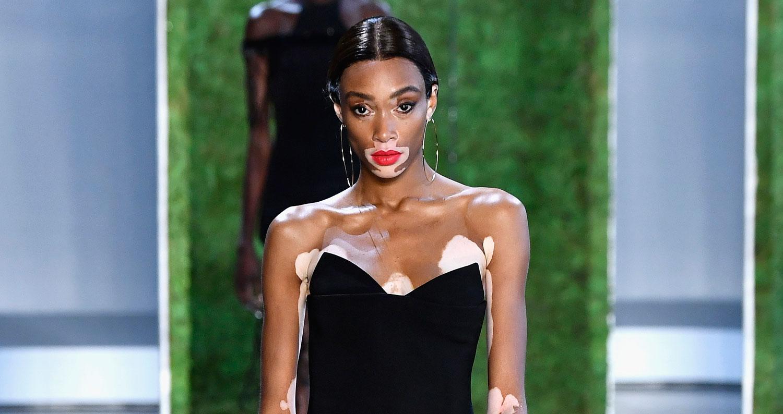 Winnie Harlow Announces She's the Next Victoria's Secret Angel! - 2018 New York Fashion Week September ...